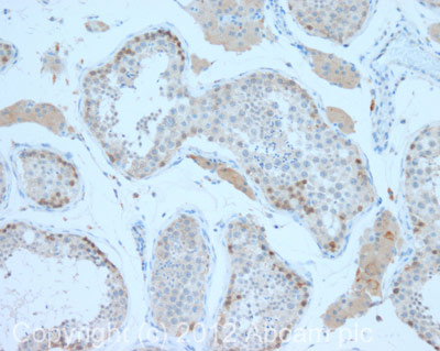 Immunohistochemistry (Formalin/PFA-fixed paraffin-embedded sections) - Anti-Beta TRCP antibody (ab71753)