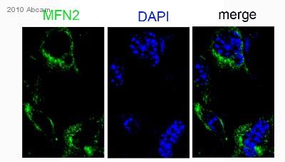 Immunocytochemistry/ Immunofluorescence - FMN2 antibody (ab72052)
