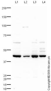 Western blot - FADS2 antibody (ab72189)