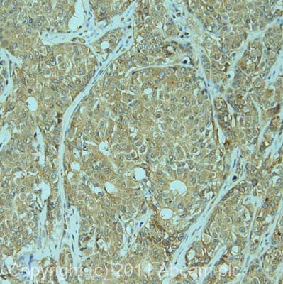 Immunohistochemistry (Formalin/PFA-fixed paraffin-embedded sections)-KIF1C antibody(ab72238)