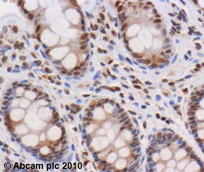 Immunohistochemistry (Formalin/PFA-fixed paraffin-embedded sections) - CHD4 antibody (ab72418)