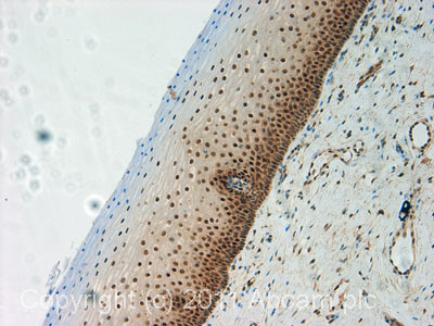 Immunohistochemistry (Formalin/PFA-fixed paraffin-embedded sections)-Cullin 4a antibody(ab72548)
