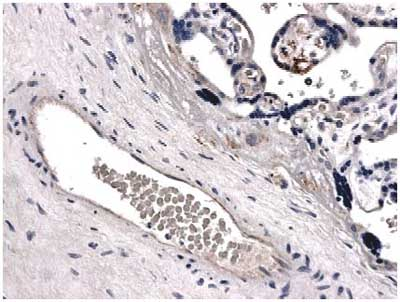 Immunohistochemistry (Formalin/PFA-fixed paraffin-embedded sections) - BCRP/ABCG2 antibody [MM0047-2J39] (ab72788)