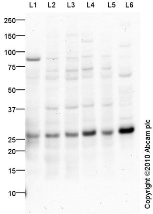 Western blot - Anti-Rab5b antibody (ab72907)
