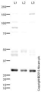 Western blot - Cathepsin D antibody (ab72915)