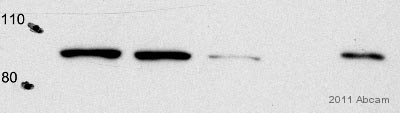 Immunoprecipitation - QARS antibody (ab72957)