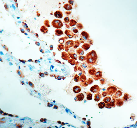 Immunohistochemistry (Formalin/PFA-fixed paraffin-embedded sections) - Anti-NAPSIN A antibody [KCG1.1], prediluted (ab73098)