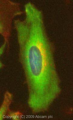 Immunocytochemistry/ Immunofluorescence - Transglutaminase 2 antibody (ab73170)