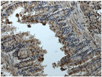 Immunohistochemistry (Formalin/PFA-fixed paraffin-embedded sections) - Eph receptor A2 antibody [RM-0051-8F21] (ab73254)