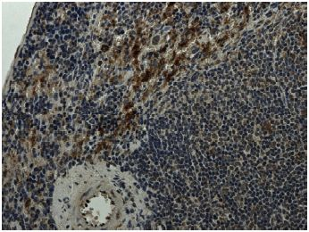 Immunohistochemistry (Formalin/PFA-fixed paraffin-embedded sections) - Integrin alpha 4+beta 7 antibody [RM0059-2G18] (ab73261)