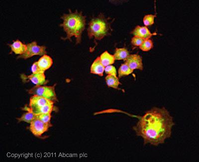 Immunocytochemistry/ Immunofluorescence-CPEB1 antibody(ab73287)