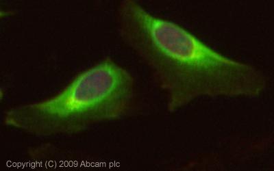 Immunocytochemistry/ Immunofluorescence - ZCCHV antibody (ab73369)