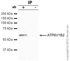 - Anti-ATP6V1B2 antibody (ab73404)