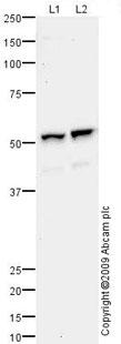 Western blot - Lysosomal acid lipase antibody (ab73445)