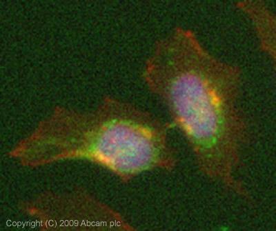 Immunocytochemistry/ Immunofluorescence - Lysosomal acid lipase antibody (ab73445)