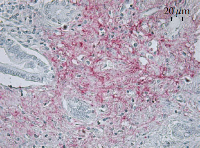 Immunohistochemistry (Formalin/PFA-fixed paraffin-embedded sections) - Anti-MCP1 antibody (ab73680)
