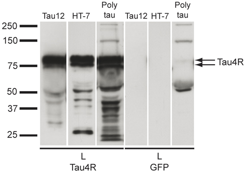 Western blot - Anti-Tau antibody [Tau 12] (ab74137)