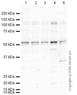 Western blot - ETV6 / Tel  antibody (ab74361)