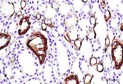 Immunohistochemistry (Formalin/PFA-fixed paraffin-embedded sections) - Anti-Cytokeratin antibody [AE-1] (ab74649)