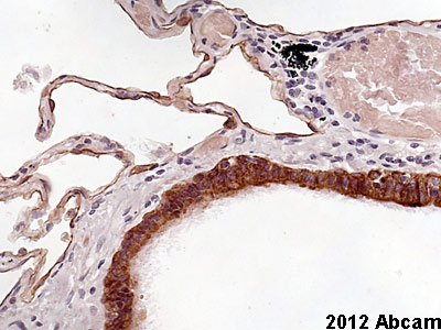 Immunohistochemistry (Formalin/PFA-fixed paraffin-embedded sections) - Anti-Cytokeratin antibody [AE-3] (ab74650)