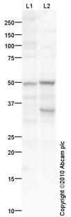 Western blot - TIM 1 antibody (ab75295)