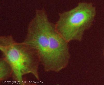 Immunocytochemistry/ Immunofluorescence - P2X3 antibody (ab75453)
