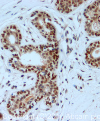 Immunohistochemistry (Formalin/PFA-fixed paraffin-embedded sections) - CABLES1 antibody (ab75535)