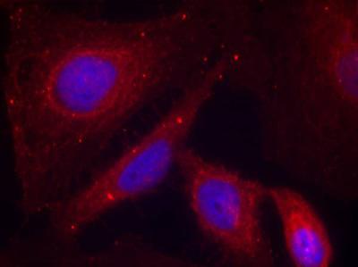 Immunocytochemistry/ Immunofluorescence - PAK1 (phospho T212) antibody (ab75599)