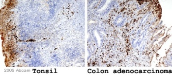 Immunohistochemistry (Formalin/PFA-fixed paraffin-embedded sections) - Anti-MRP8 + MRP14 antibody [MAC 387], prediluted (ab75636)