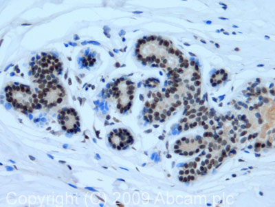 Immunohistochemistry (Formalin/PFA-fixed paraffin-embedded sections) - KAT4 / TBP Associated Factor 1 antibody (ab75656)