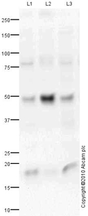 Western blot - Interleukin 34 antibody (ab75723)