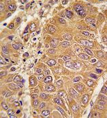 Immunohistochemistry (Formalin/PFA-fixed paraffin-embedded sections)-Apolipoprotein A I antibody - N-terminal(ab75922)