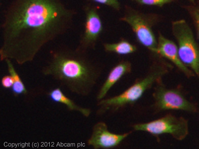 Immunocytochemistry/ Immunofluorescence - Anti-IGFBP3 antibody (ab76001)