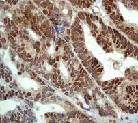 Immunohistochemistry (Formalin/PFA-fixed paraffin-embedded sections) - Nrf2 (phospho S40) antibody [EP1809Y] (ab76026)