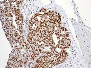 Immunohistochemistry (Formalin/PFA-fixed paraffin-embedded sections)-Anti-Nrf2 (phospho S40) antibody [EP1809Y](ab76026)