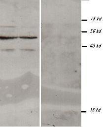 Western blot - Methylated Lysine  antibody (ab76118)
