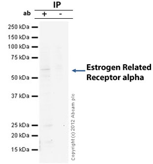 Immunoprecipitation - Anti-Estrogen Related Receptor alpha antibody [EPR46Y] (ab76228)