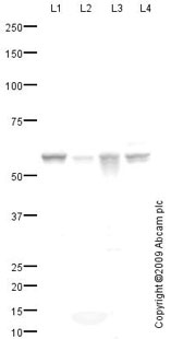 Western blot - Glucose 6 Phosphate Dehydrogenase antibody (ab76598)