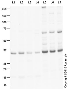 Western blot - CLEC2A antibody (ab76711)