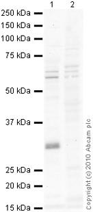 Western blot - LYRIC antibody (ab76742)