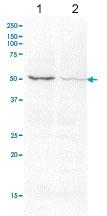 Western blot - Anti-Activin Receptor Type IIB antibody (ab76940)