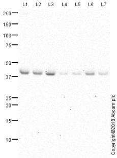 Western blot - HES6 antibody (ab76982)