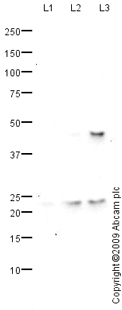 Western blot - SOCS1  antibody (ab77072)