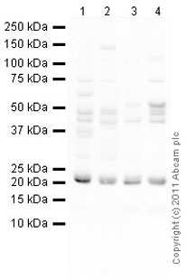Western blot - Anti-SOCS1  antibody (ab77072)