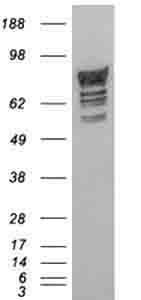 Western blot - PDE4D antibody (ab77080)