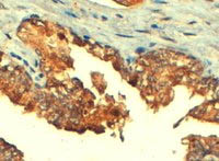Immunohistochemistry (Formalin/PFA-fixed paraffin-embedded sections) - Anti-MRP4 antibody (ab77184)