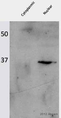 Western blot - Anti-ZNF3 antibody (ab77201)