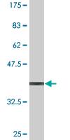 Western blot - RNF40 antibody (ab77211)