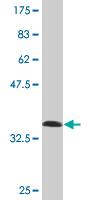 Western blot - Islet 2 antibody (ab77212)