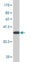 Western blot - DDX1 antibody (ab77213)